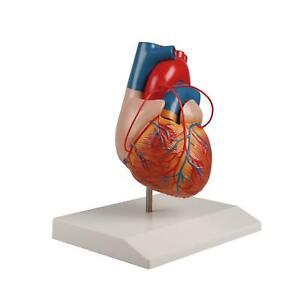 Erler-Zimmer Herz Modell mit Bypass