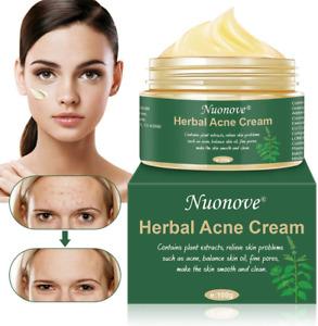HERBAL Acné Crème Traitement Acné AntiAcné Crème Gel anti acné visage régénérant