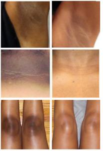 Dark Skin Bleaching Cream Whitening Lightening AHA - Face & Body, Max Strength