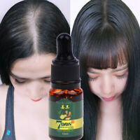 7 Days Hair Care Ginger Germinal Essential Oil Polygonum Anti-Hair Loss 10mlFR