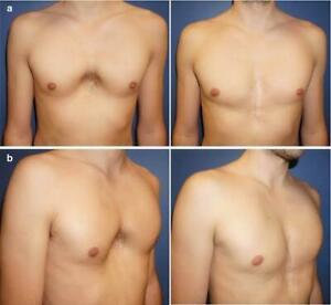 Fixing Pectus Excavatum Funnel Hollowed Sunken Chest Syndrome Device
