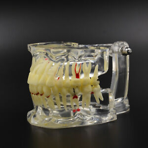 Dental Study Tooth Transparent Adult Pathological & Disease Teeth Model