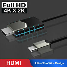 MHL USB Type C to HDMI 1080P HD TV Cable Adapter For Android Samsung Note 10 9 8