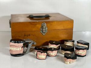 RARE - Vintage 1950s Dental - Dentist - Study Models - Teeth,Dentures,mouth kit