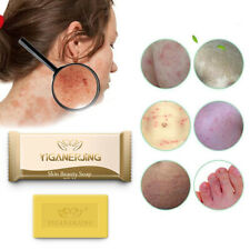 5X Sulfur Soap Skin Antibacterial Treatment Acne Bath Shampoo Soap Skin Cleaner