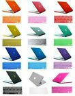 """Crystal Hard Case Cover skins For Mac Macbook White 13"""" 13.3 A1342 A1181 207 Old"""