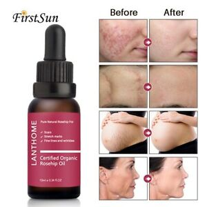 Organic Rosehip Oil Scars Fine Lines Wrinkles Stretch Marks Dehydrated Ageing