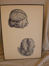 antique ANATOMICAL MEDICAL PRINT male human BRAIN skull