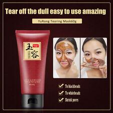 Unbranded Skin Blackhead Masks