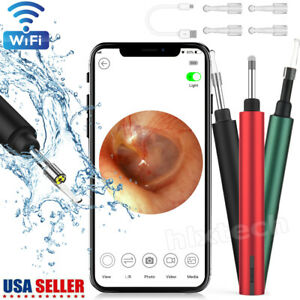 Wireless WiFi Otoscope Ear Scope Endoscope Clean Camera for iPhone iPad Android