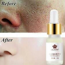 Hot Pore Shrinking Essence Tightening Moisturizing Oil control Blackhead Remover