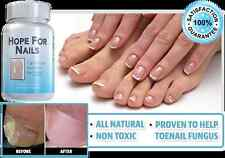 Hope For Nails - All Natural Toenail Fungus Relief Supplement, Fungal Nail NEW