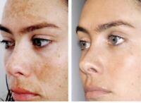 Intense Skin Whitening Lightening Alpha arbutin ,Vitamin C, Niacinamide  CREAM