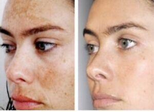 Skin Whitening Lightening Alpha arbutin Vitamin C Niacinamide Sun/Age Spot CREAM