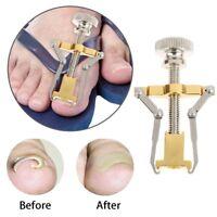 Onyxis Ingrowing Ingrown Toe Nail Corrector Straightener Wonderful Worth