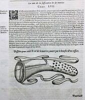 Gynécologie 1614 Obstétricien Accouchement Matrice Ambroise Paré Médecine