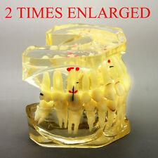 2 Times Enlarged Dental Adult Pathologies Study Model Patient Education Model