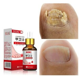 Nail Fungal Treatment Feet Care Essence Toe Nail Fungus Removal Foot Whitening