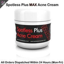 Spotless Plus Acne Cream 50G Treats Blackheads, Whiteheads, Spots, Acne Plus