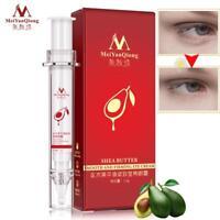 Anti-Puffiness Black Dark Circle Remover Anti-Aging Ageless Eye Cream Advanced