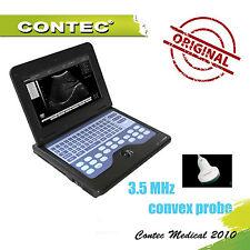 Digital smart portatile B-Ultrasound Diagnostic System Scanner 3.5M convessa