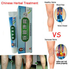 Effective treatment of varicose veins of lower limb pain and itching of the oint