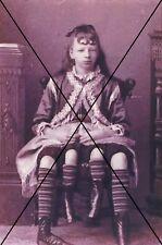 "curiosité , oddities : photo "" fille a 4 jambes """