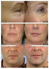 Onda de radio RF profesional Face Lift Derma Pen Tono De Ojos Arrugas Máquina de Piel Nuevo