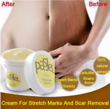 Natural PASJEL Skin Body Whitening Cream For Eliminate Stretch Mark Scar Removal