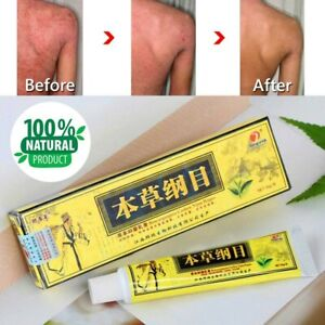 NEW ORIGINAL ADVANCED PSORIASIS & ECZEMA NATURAL CREAM RELIEF. 100% Genuine.
