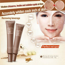 Skin Care Age Spot Melasma Remove Freckle Face Cream Whitening Lightening