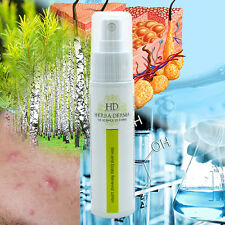 acne renewal lotion with vegetable active ingredients