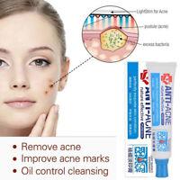 Acne Treatment Face Cream Anti Acne Scar Removal Pimple Blackhead Moisturizing