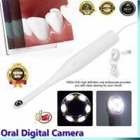 Oral Intraoral Camera WIFI Endoscope Teeth Mirror LED Light Portable Endoscope