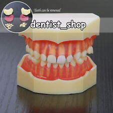 3-Year-Old Children Teeth Model of 20 Removable Teeth for Study & Communication