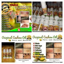 Kasoy Oil Treatment Dandruf Skin Tags Warts Calluses Skin Allergy Kulugo More