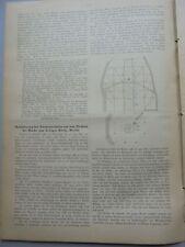 1886 81 Berlin Kirche zum heiligen Kreuz Beförderung Baumaterialien Teil 3