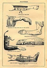 Framed Vintage Medical Print – Guide to Splint a Fractured Arm (Picture Surgery)