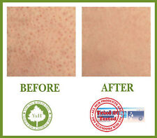 ***** BEST TREATMENT TO CURE KERATOSIS PILARIS / KP / CHICKEN SKIN *****