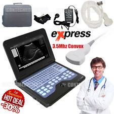 Laptop Ultrasound machine à scanner, système de diagnostic, 3.5Mhz sonde Convex