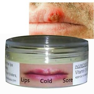 Cold Sores Lips Blisters Cankers Herpes Relief SILICA & ALOE VERA Jelly ALKAVITA