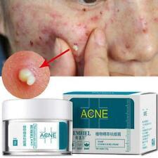 Akne-Behandlung Gesichtscreme Anti-Akne-Narben-Entfernung Mitesser Pickel F L2T3