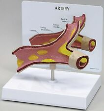 NEW - Artery Anatomical Model Anatomy Plaque Cutaway w Key Card LFA #2600