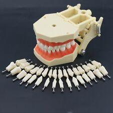 Frasaco AG3 Type Dental Typodont Restorative Standard Model 32PC Removable Teeth