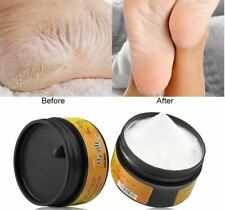 1pc Horse Oil Feet Cream Heel Cream for Athlete's Foot Feet Mask Itch Blisters A