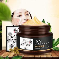 Herbal Acne Cream Anti Pimple Spot Acne Scars Blackhead Removal Face Care