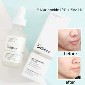 The Ordinary Niacinamide 10% Zinc 1% High Strength Vitamin Mineral Serum 30ml UK