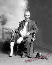 Photograph Civil War Amputee James Hanger & his Artificial Leg 1902 circa  8x10