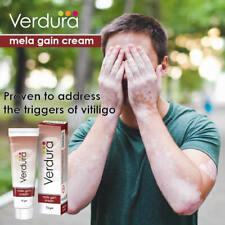 Mela Gain Cream Repigmentation White Marks Vitiliginous Skin Vitiligo Treatment