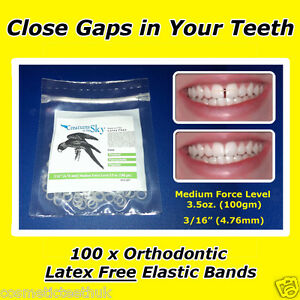 CLOSE TEETH GAPS PROFESSIONAL ORTHODONTIC ELASTIC LATEX FREE BANDS